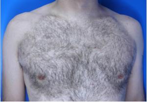 kona-male-chest-before-1