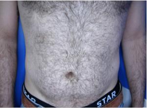 kona-male-chest-before-2