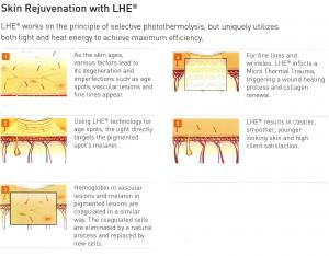 How LHE skin rejuvenation works
