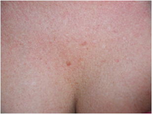 female decollete 1 month before LHE skin rejunvenation