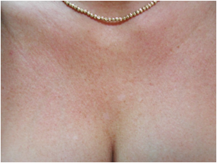 female decollete 1 month after LHE skin rejunvenation