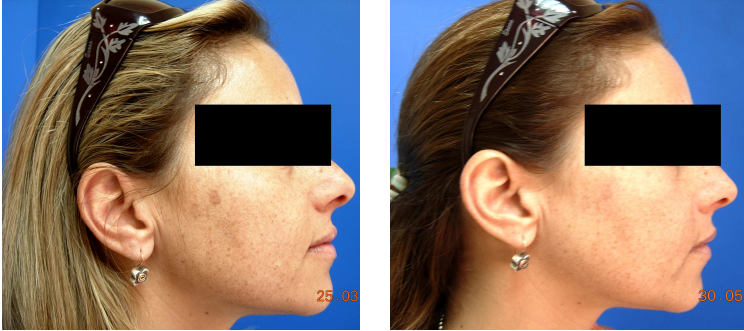 female facial sun spot before and after skin rejuvenation