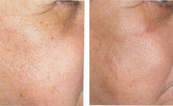 Femal crows feet before and after skin rejuvenation