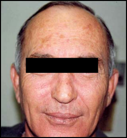Male facial ages spots before skin rejuvenation