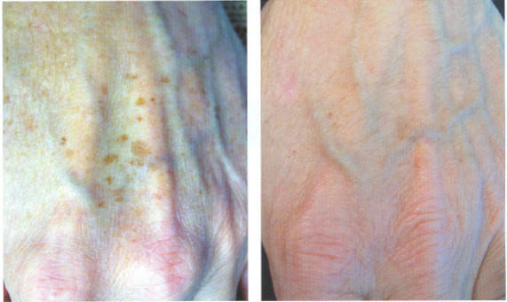 aegs spots on hand befoer and after skin rejuvenation